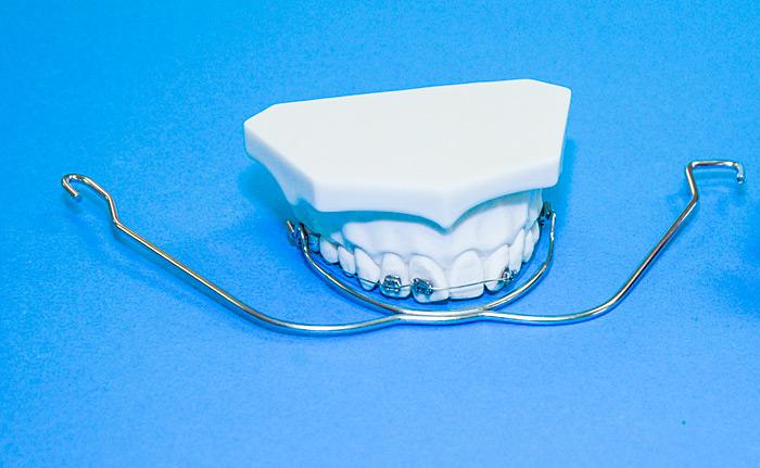 Außenbogen zahnspange